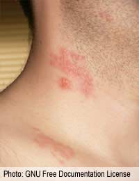 Shingles Back Pain Herpes Varicella