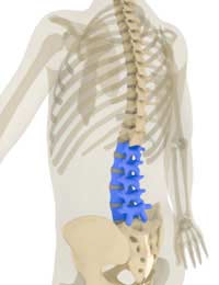Chordoma Back Pain Cancer Spine Spinal